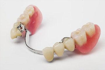 Delna zobna proteza