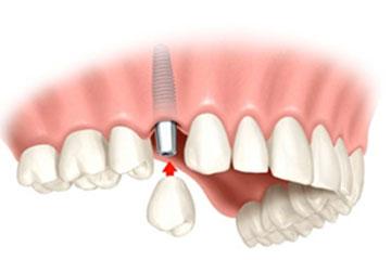 Implantat namesto 4 zgoraj