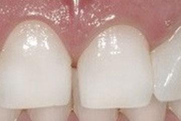 Po beljenju zob