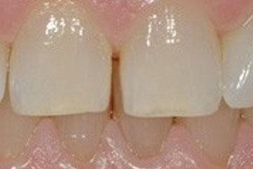Pred beljenjem zob