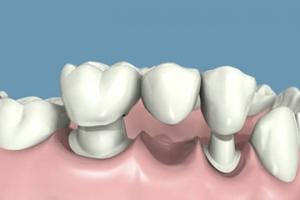 Zobni mostiček iz 3 enot